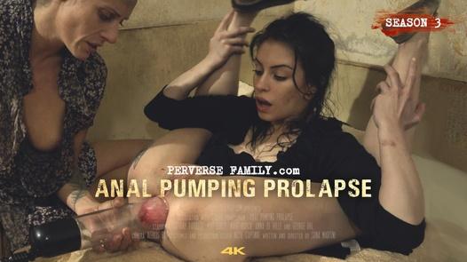 Anal Pumping Prolapse